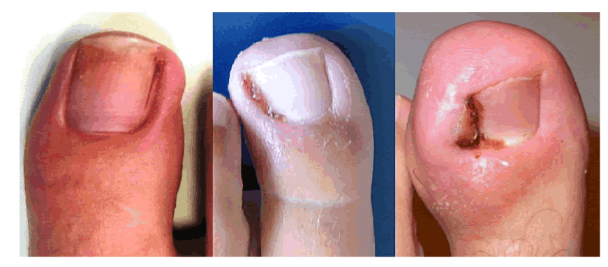 Nail Avulsion Blog